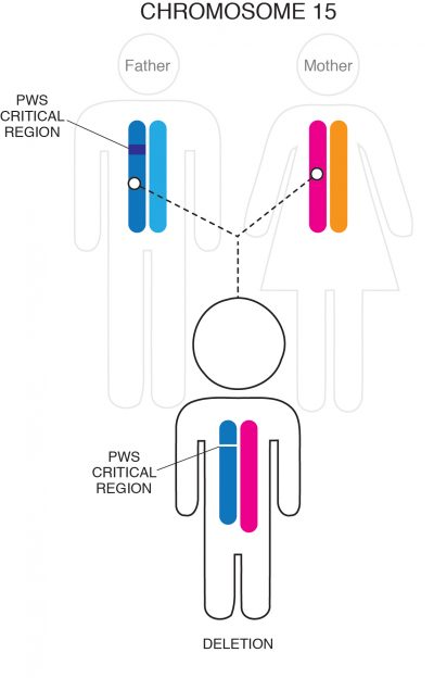 PWS by Deletion chromosome 15