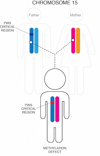 Diagram of PWS by imprinting mutation chromosome 15