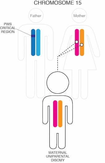 Diagram of PWS by UPD chromosome 15