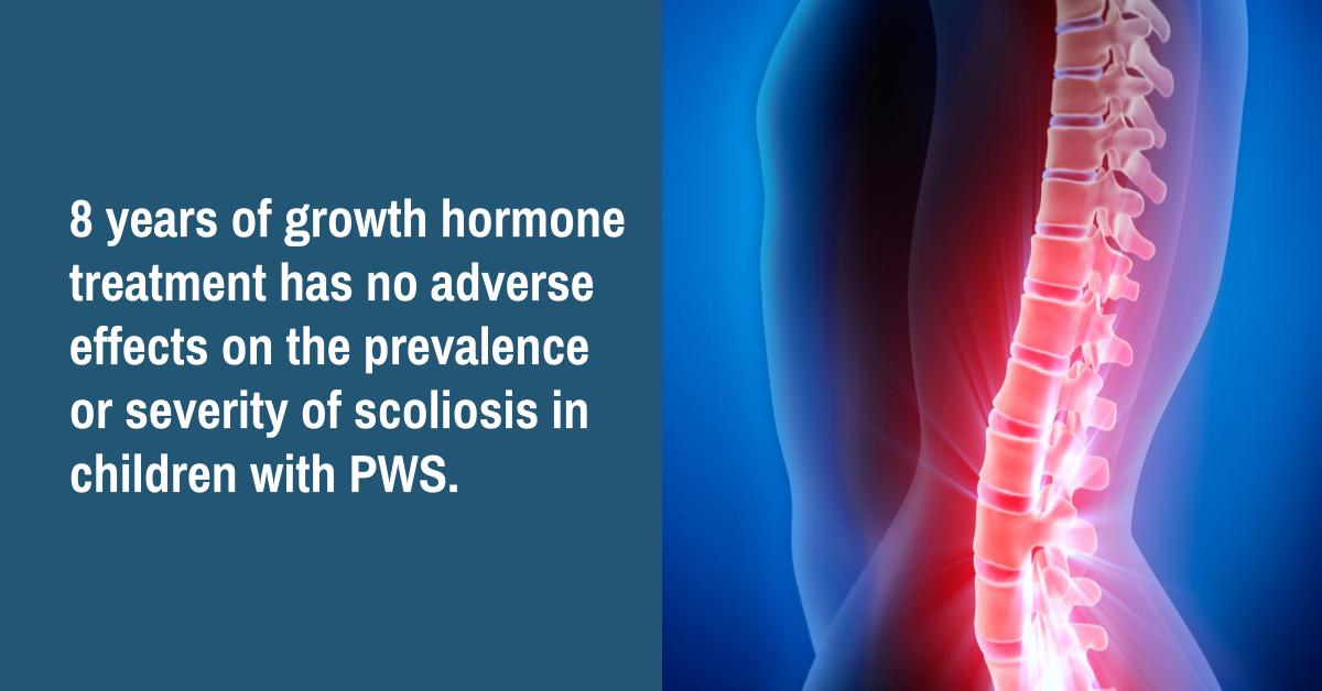 Study Confirms Growth Hormone for PWS Does Not Worsen Scoliosis