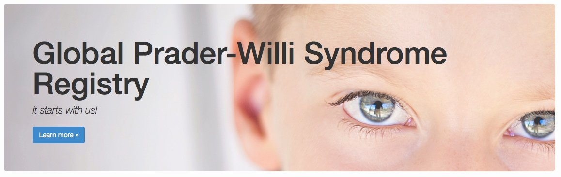 Prader willi syndrome research